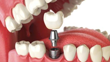 Ce este implantul dentar? Implante sau implanturi?