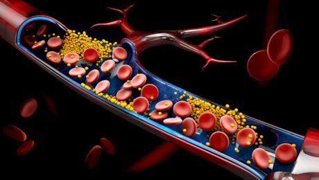 Cât trebuie să fie colesterolul?
