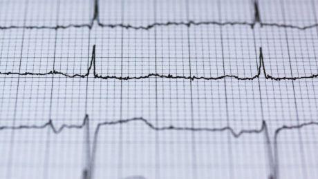 Care este cea mai mare arteră din corp? Cât de importantă este?