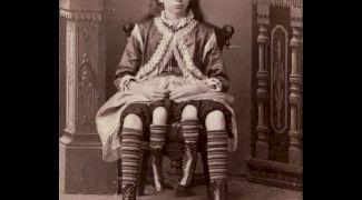 Care este povestea lui Myrtle Corbin, femeia cu patru picioare?