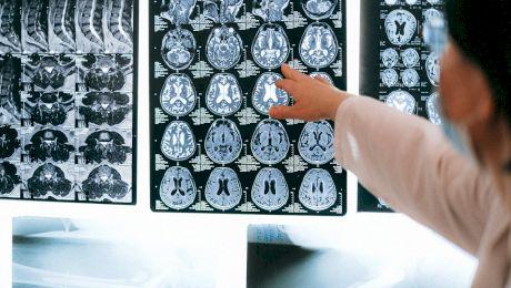 Ce este RMN-ul? Ce este CT-ul? Care este diferența dintre CT și RMN?