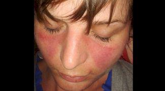 Ce este lupusul? Simptomele timpurii și tipuri de lupus