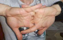 Ce se întâmplă dacă îți trosnești degetele?
